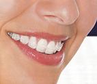 brackets transparentes de zafiro en clinica de vicente ortodoncia de granada
