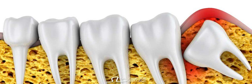 imagen de apiñamiento dental que se corrige con tratamiento de ortodoncia dental en Granada