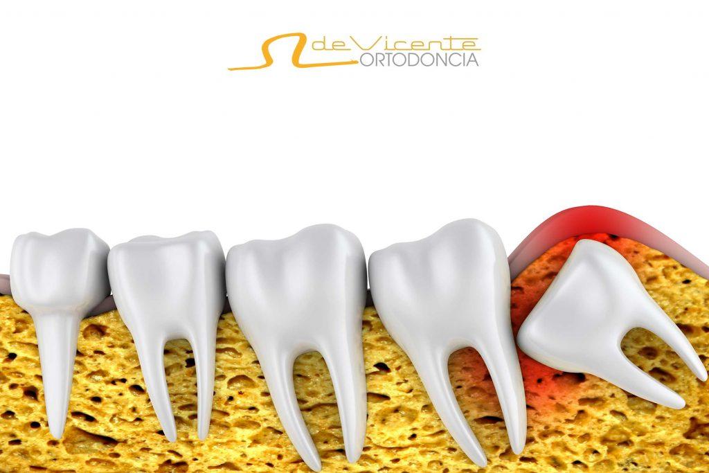 El apiñamiento de dientes