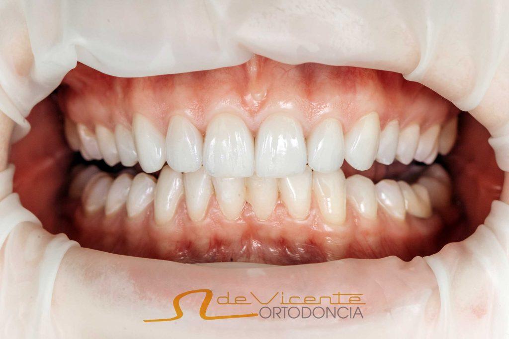 Carillas dentales en Granada