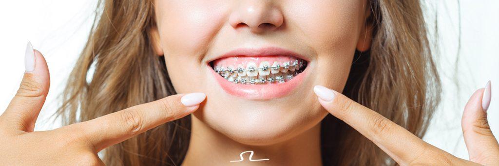 sonrisa con brackets tras una de las fases del tratamiento de ortodoncia