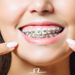 ¿Sabes cómo cuidar tu aparato de ortodoncia?