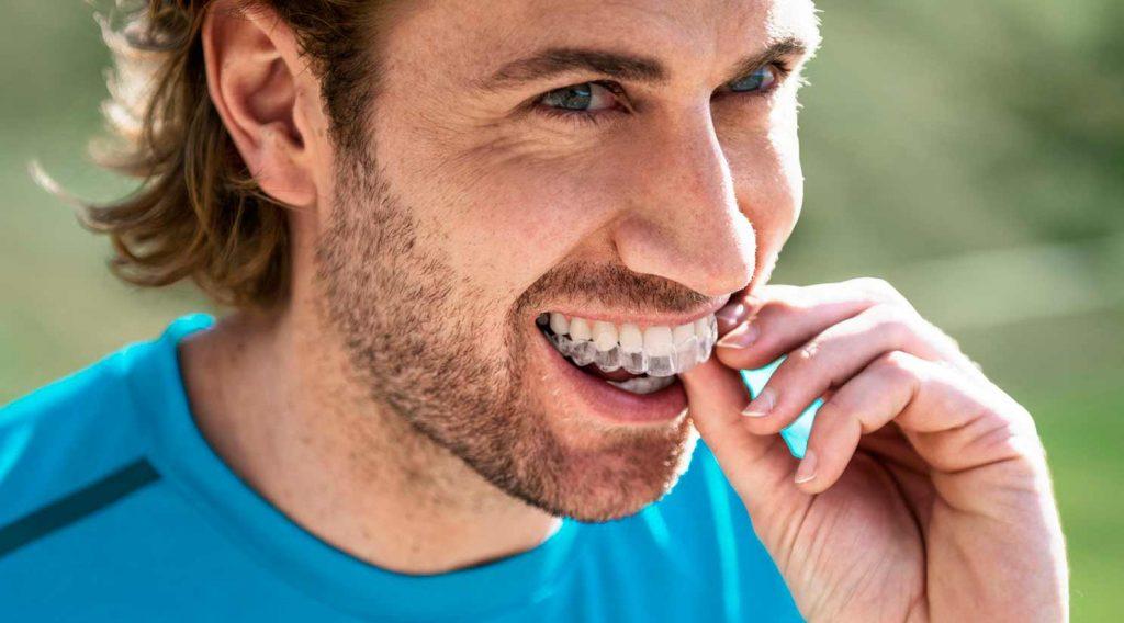 7 ventajas de Invisalign: ortodoncia invisible vs brackets