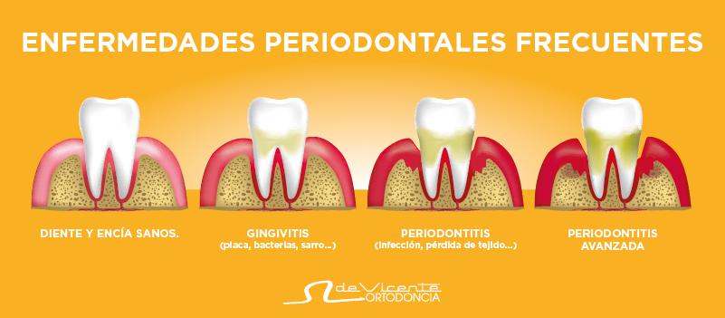 La periodoncia trata enfermedades de las encías que son la base de una dentadura sana como los cimientos de una casa que es lo que se muestra en la imagen