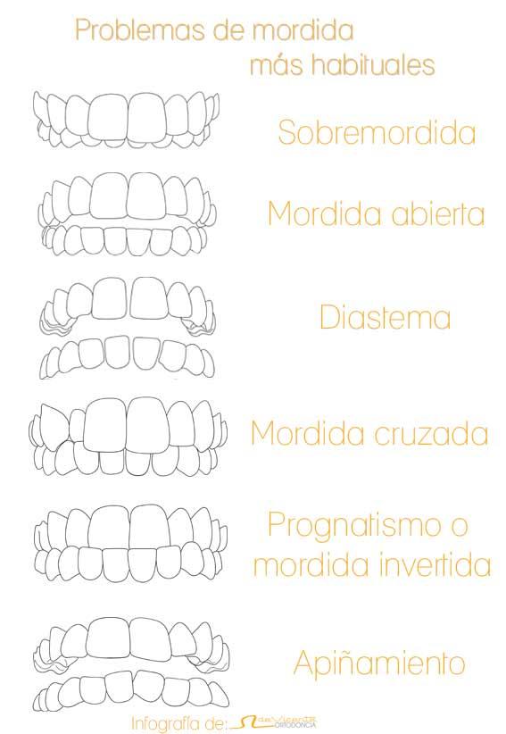infografía de los problemas en los dientes más habituales que son tratados en la clínica de ortodoncia en Granada