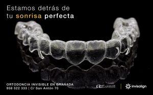 Ortodoncia invisible en granada clinica de vicente ortodoncia granada