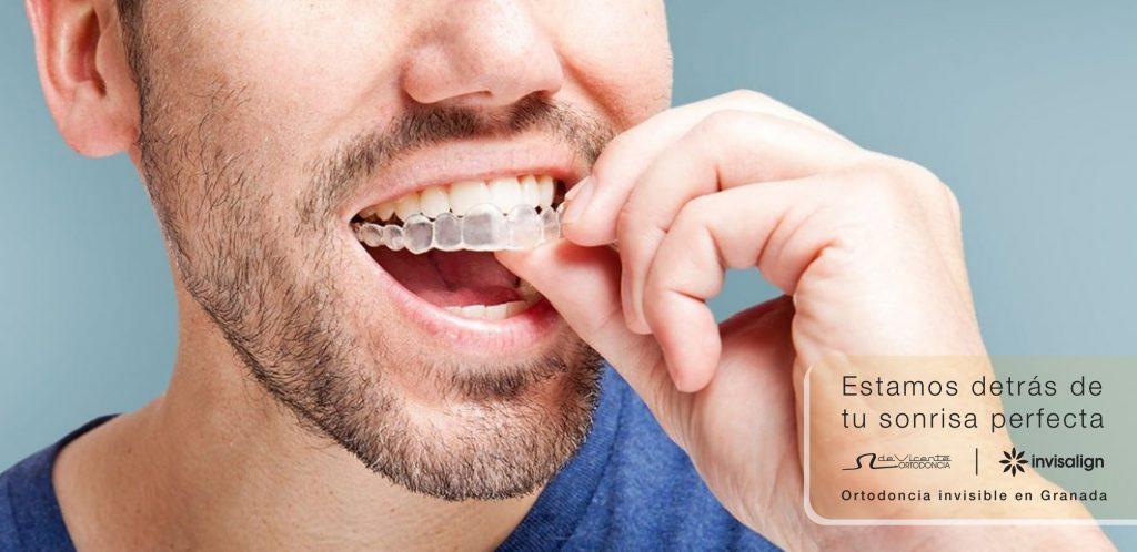 Hombre con tratamiento de ortodoncia invisalign de De Vicente Ortodoncia
