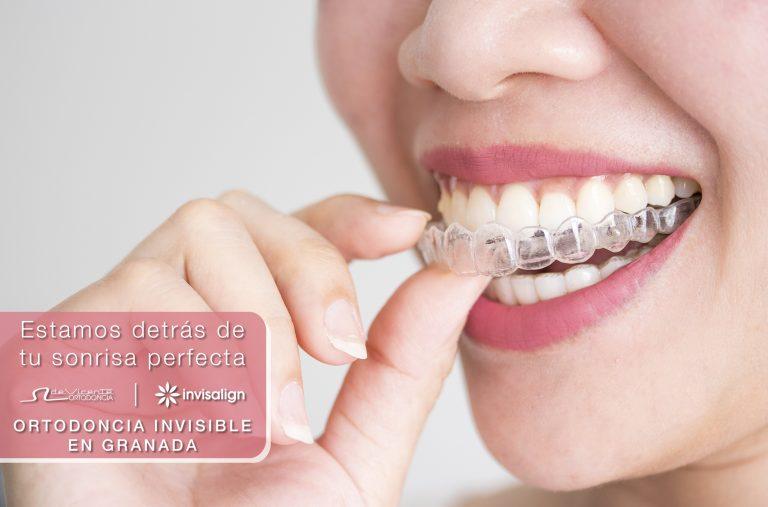 ortodoncia transparente invisalign en de vicente ortodoncia