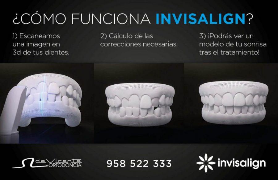 Fases del tratamiento de ortodoncia invisible Invisalign