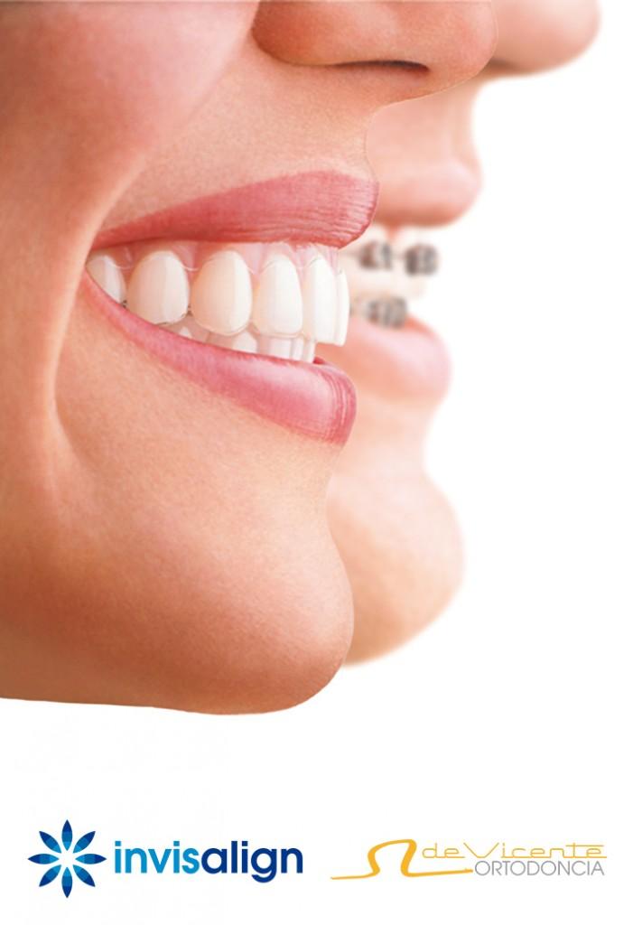 brackets transparentes y ortodoncia invisible de invisalign en de Vicente Ortodoncia GRanada