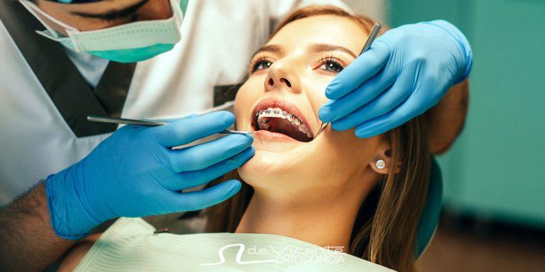 joven con tratamiento de ortodoncia se hace una revisión