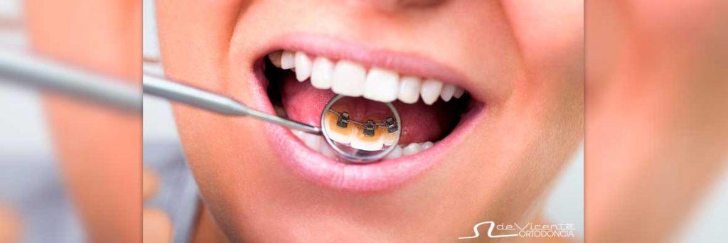 ortodoncia lingual que no se ve porque va detrás de los dientes