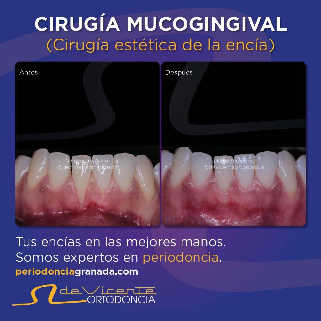 cirugía en las encías para tratar la periodontitis en Granada