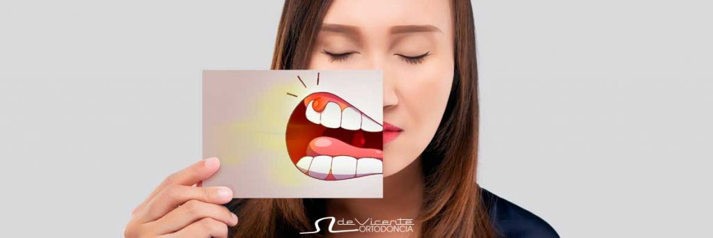 imagen metafórica de la sensación de gingivitis que se puede curar con Periodoncia en Granada