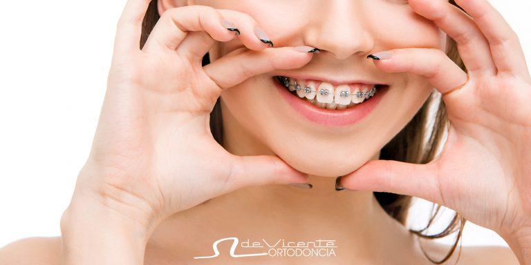 aparato de ortodoncia o brackets de tratamiento de ortodoncia en Granada para adolescentes